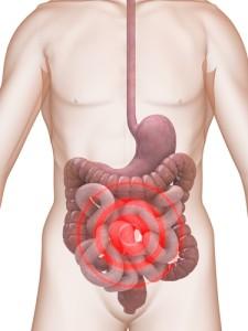 下痢の原因1